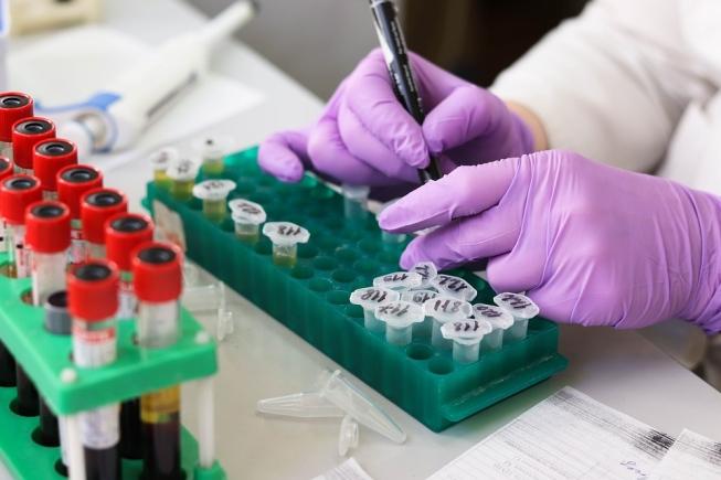 Yaravirus brasiliensis vírus descoberto por pesquisadores da UFMG na Lagoa da Pampulha é destaque na Science